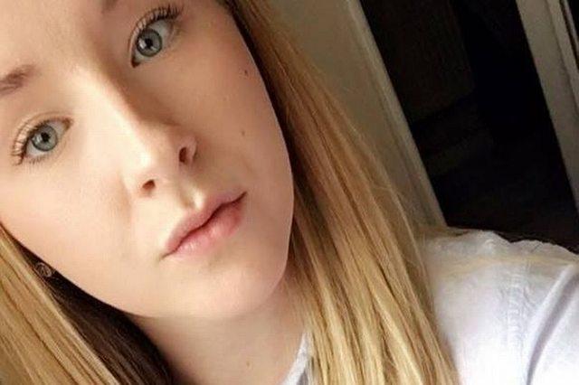 Временная татуировка хной изуродовала руку 20-летней девушке